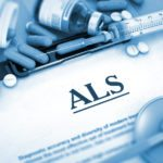 Home Care in Trussville AL: The Stages of ALS
