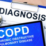 Home Health Care in Birmingham AL: COPD Flare